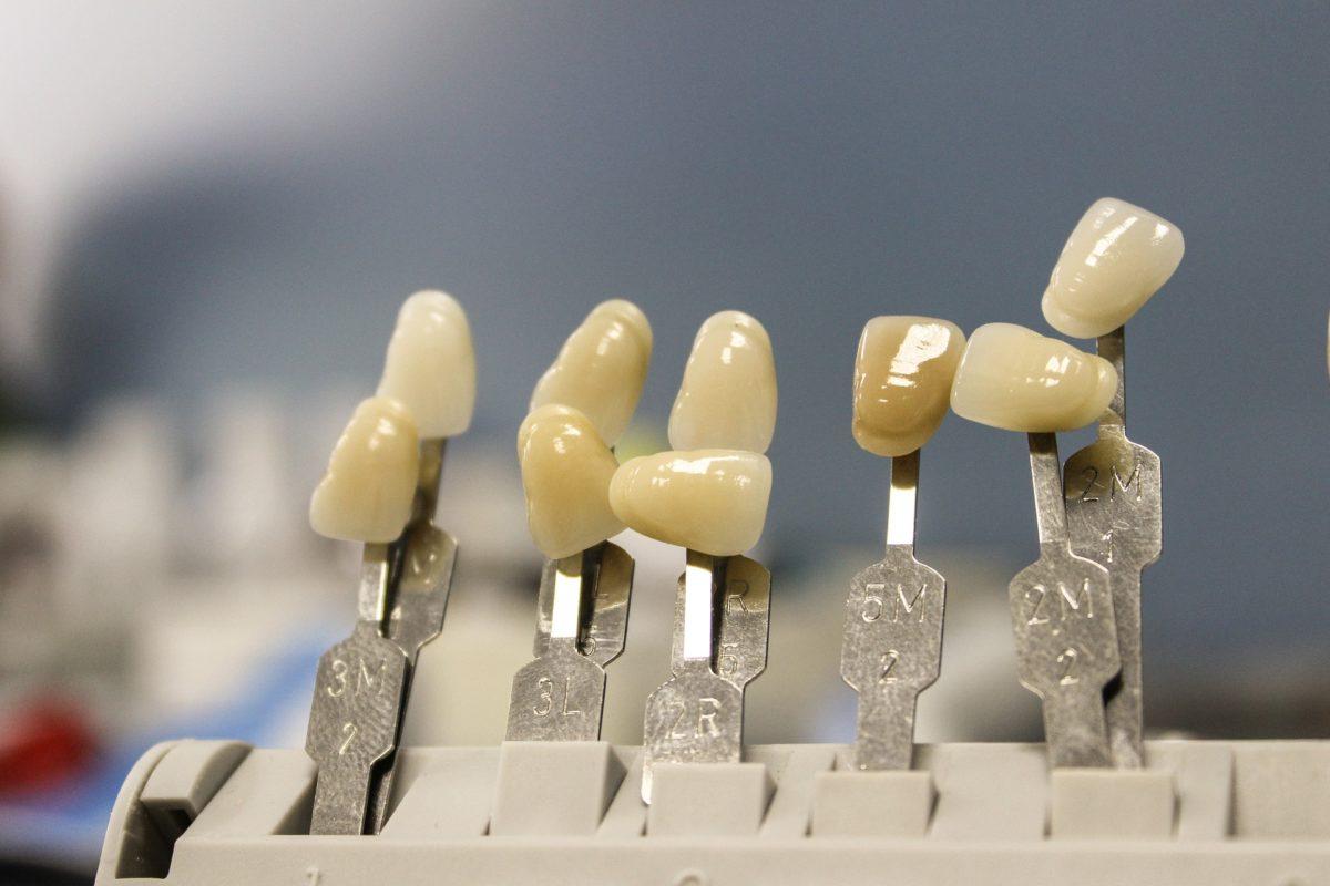 Przepiękne nienaganne zęby także godny podziwu przepiękny uśmieszek to powód do dumy.